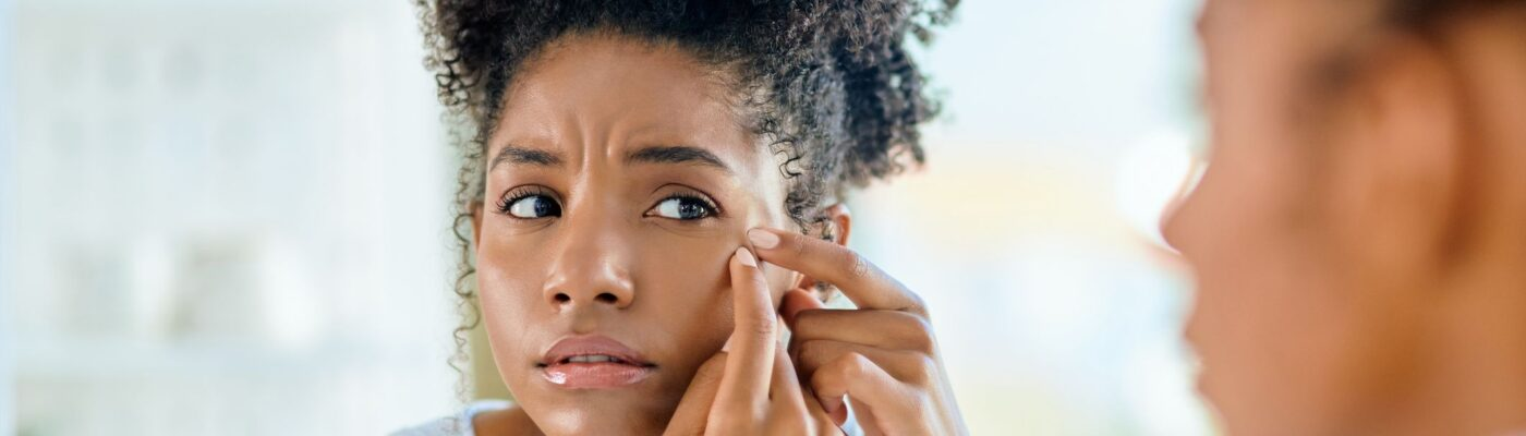 Adult Acne: What Causes It and How Can You Treat It?