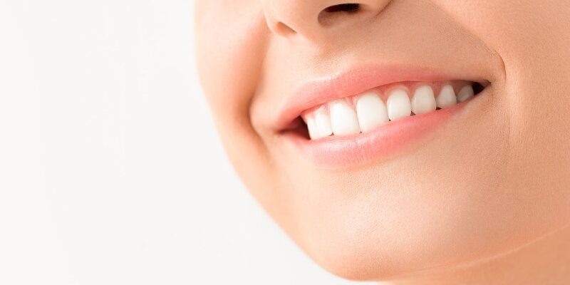 How to Fix Your Teeth for Less